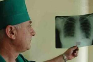 tuberkulez-moldova